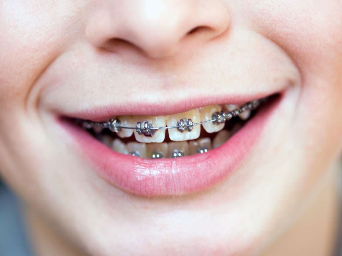 What kind braces will I even have to wear?